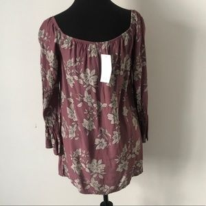 Tobi Dresses - Tobi Dress XS NWT